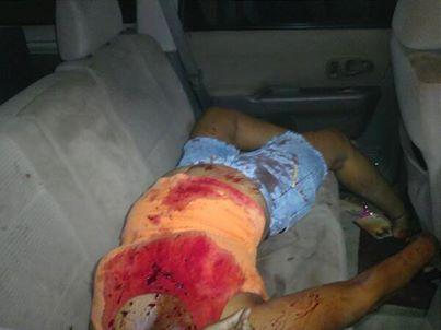 Villa Cerró : Muere mujer a causa de heridas de bala en Villa Cerro.
