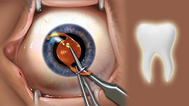 Un diente en el ojo: Una extraña operación ayuda a un ciego a recuperar la visión.