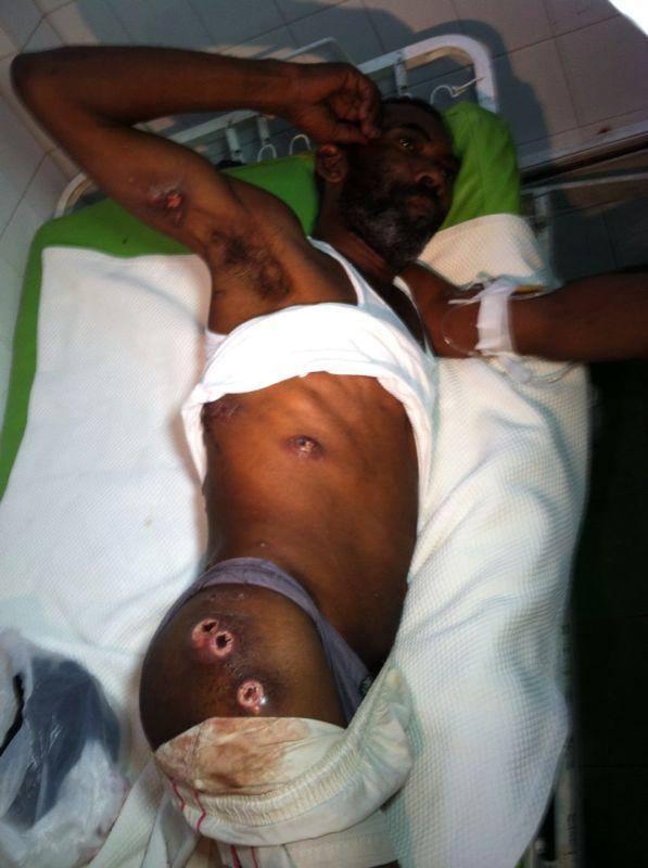 Más de 60  reclusos infectados con ulcera en la piel y síntomas de cólera en la cárcel