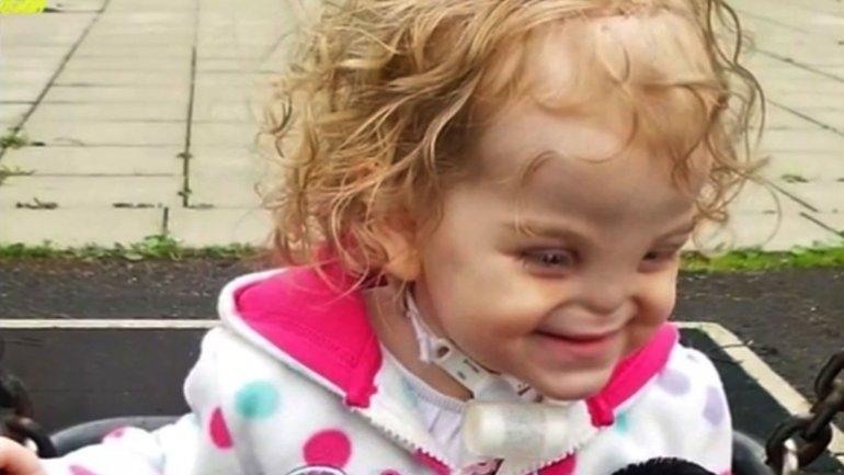 La conmovedora historia de Tessa Evans, la niña que nació sin nariz.