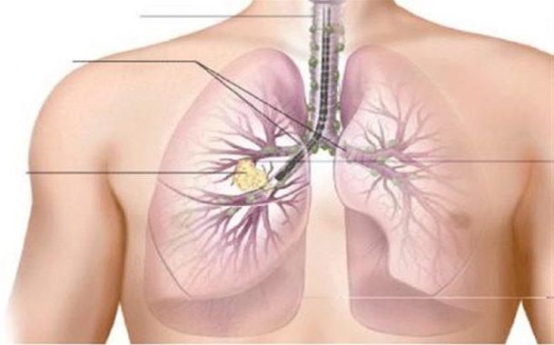 Cáncer de pulmón cuesta 1,35 billones de dólares anuales a Latinoamérica.